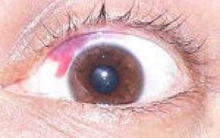Повреждение глаза симптомы. Поверхностные повреждения глаз. В случаях артериального кровотечения необходимо