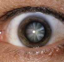 Как действовать при травматической катаракте. Контузия хрусталика и посттравматическая катаракта: признаки, диагностика, лечение Поврежден хрусталик глазной чем лечить