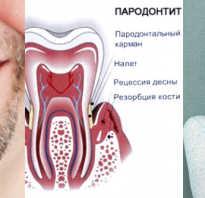 Почему формируется неправильный прикус и как его исправить? Неправильный прикус зубов — причины и последствия Стирание зубов при неправильном прикусе