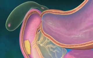 Желчегонные средства и препараты желчи. Гастрин, секретин, холецистокинин-панкреозимин: синтез, функции Холецистокинин панкреозимин