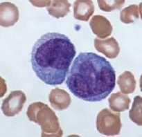 Базофилы 0. Пониженные базофилы в анализе крови