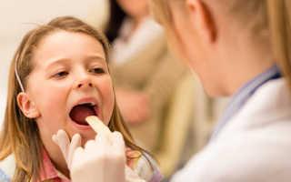 Запах ацетона изо рта у ребенка 3 лет. Какие меры предпринять при запахе ацетона изо рта у ребенка? Вирусы и инфекции ЛОР-органов