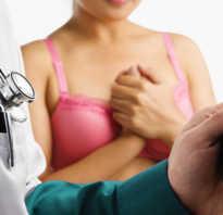 Рак молочной железы что делать как лечить. Лечение рака груди. Рак груди – лечение онкологии в домашних условиях