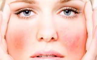 Аллергическая сыпь на лице у взрослого причины. Аллергия на лице – причины появления и лечение недуга. Примеры препаратов приведены ниже