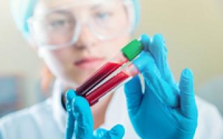 Почему у женщин бывает увеличение лейкоцитов в крови. Что значит повышен уровень лейкоцитов в анализе крови Чем грозит повышение лейкоцитов
