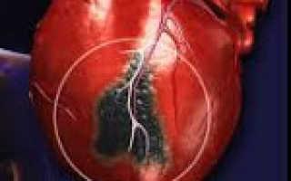 Характерные признаки и последствия инфаркта передней стенки сердца. Инфаркт миокарда. Виды, причины и лечение инфаркта миокарда. Кардиогенный шок Боковой инфаркт миокарда на экг признаки