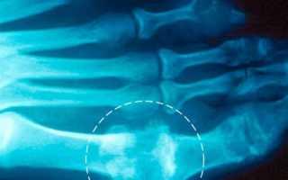Рентгенологические признаки подагры описание снимка. Рентгенологическим признаком поражения суставов при подагреЗаболевания][