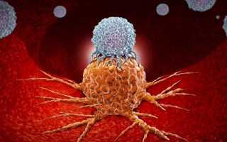 Сообщения о новых исследованиях в области онкологии. Создателям и разработчикам новых теорий, технологий и методов лечения рака Новое в теории болезни рак