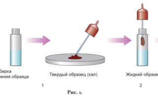 Иха фактор на скрытую кровь. Тест иммунохроматографический для выявления гемоглобина в кале (скрытая кровь)