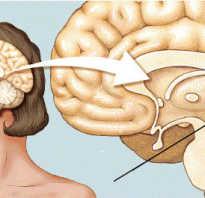 Что значит гипертрофия эпифиз размер. Что такое шишковидная железа головного мозга и за что она отвечает? Эпифиз — что это такое