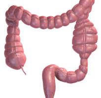 Паралитическая кишечная непроходимость. Паралитический илеус: симптомы, лечение и последствия Консервативное лечение паралитической кишечной непроходимости