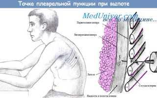Пункцию плевральной полости при пневмотораксе проводят. Техника проведения пункции плевральной полости при пневмотораксе. Значение пункции плевральной полости