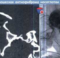 Юношеская ангиофиброма. Клиника, диагностика, лечение ювенильной ангиофибромы носоглотки. При поражении кожных покровов