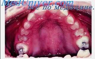 Аномалии и деформации зубочелюстной системы. Причины и механизм образования зубочелюстных деформаций. Что происходит при разрушении или потере зуба