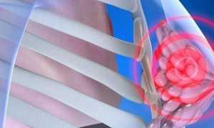 Фиброзно кистозная мастопатия с перегородками. Cимптомы фиброзно-кистозной мастопатии молочных желез и как лечить заболевание. Видео на тему