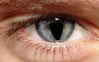Колобома сетчатки глаза атлас глазных болезней. Что такое колобома хрусталика глаза, ее причины возникновения и лечение. Осложнения при колобомах
