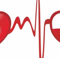 Что дает сдача крови для организма женщины. Кровь сдавать нужно и полезно
