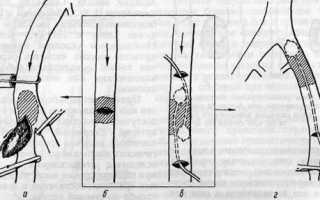 Эмболэктомия по Fogarty. Удаление тромбов из артерий Эмболэктомия прямым и непрямым путем