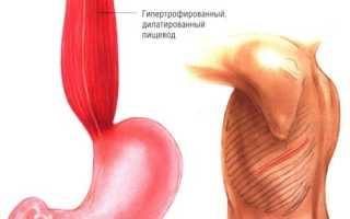 Показания. Экстрамукозная кардиопластика по Геллеру и её модификации Операция геллера с какого года проводится