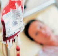 Как делать переливание крови в домашних условиях. Зачем проводят переливание крови Неправильное переливание крови грозит человеку