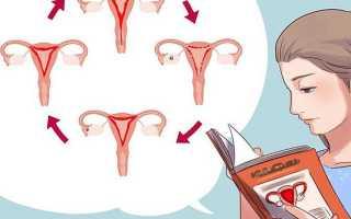Сколько течет кровь после родов у женщин. Послеродовое кровотечение — причины и динамика развития
