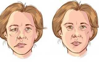 Заболевание лицевого нерва: симптомы и лечение неврита. Лицевой нерв: причины возникновения воспаления (неврита), симптомы, лечение в домашних условиях Как лечить воспаление лицевого нерва в домашних условиях