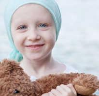 Рак крови у детей лечится. Симптомы рака крови у детей незаметны и находятся на особом контроле