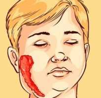 Свинка что за болезнь симптомы и лечение. Болезнь свинка симптомы и последствия, как выглядит. Методы лечения свинки
