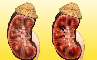Некроз почек симптомы. Папиллярный некроз — патологическое состояние вследствие заболеваний почечной тканиДиагностика][