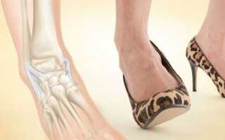 Закрытый перелом кубовидной кости. Почему болит кубовидная кость стопы? Растяжение связок стопы: лечение, причины, симптомы, что делать при растяжении