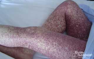 Бактерии вызывают заболевания сыпной тиф. Бактерии вызывают заболевания возвратный тиф сыпной тиф. Способы заражения сыпным тифом, схема лечения и как избежать инфицирования. Основные возбудители сыпного тифа