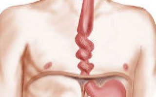 Будто кол в пищеводе. Боль в пищеводе. Почему спазм пищевода возникает на нервной почве