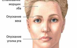 Паралич белла и парез лицевого нерва лечение. Парез лицевого нерва — симптомы и лечение. Статистика по лечению