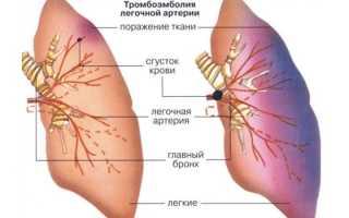 Что такое тэла и как спасают жизни при тромбоэмболии легочной артерии? Тромбоэмболия легочной артерии: как защититься от внезапного «удара»? Тромбоэмболия мелких ветвей легочной артерии мкб 10.